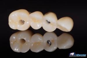 protezavimas ant implantų cirkonio oksido vainikėliais