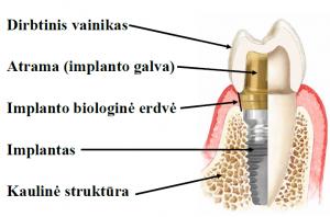 implantas2