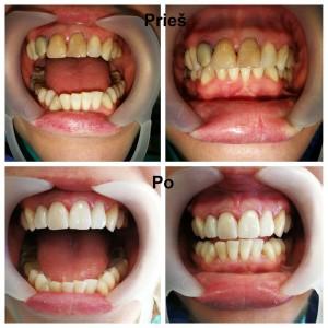 Dantų protezavimas. Viršutinis žandikaulis. Keturi priekiniai dantys (12, 11, 21, 22) - cirkonio keramikos vainikėliai. Darbą atliko gydytojas odontologas Irmantas Montvidas.