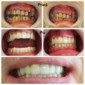 Dantų protezavimas. Viršutinis ir apatinis žandikauliai. Cirkonio keramikos vainikėliai. Darbą atliko gydytojas odontologas Irmantas Montvidas.