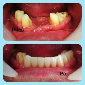 Apatinio žandikaulio defektų atstatymas cirkonio vainikėliais. Darbą atliko gyd, odontologas Irmantas Montvidas. Dantų tecnikas Justinas Stonys.