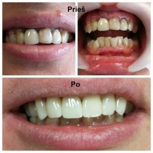Dantų protezavimas. Viršutinis žandikaulis. Priekiniai dantys (13, 12, 11, 21, 22, 23) - cirkonio keramikos vainikėliai. Darbą atliko gydytojas odontologas Irmantas Montvidas.