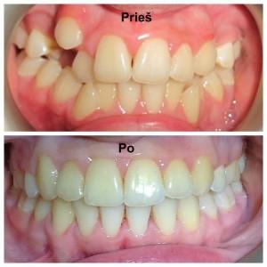 Ortodontinis gydymas (dantų tiesinimas) breketų sistemomis. Gydytoja Irina Aleksakova.