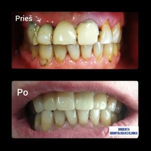 Viršutinio žandikaulio priekinių dantų protezavimas cirkonio oksido vainikėliais. Gyd.od.Irmantas Montvidas.