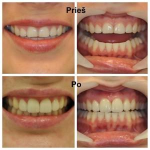Dantų protezavimas. Viršutinis žandikaulis. 12, 11, 21, 22 dantys bemetalės (stiklo) keramikos laminatės. Darbą atliko gydytoja odontologė Virginija Palionė.